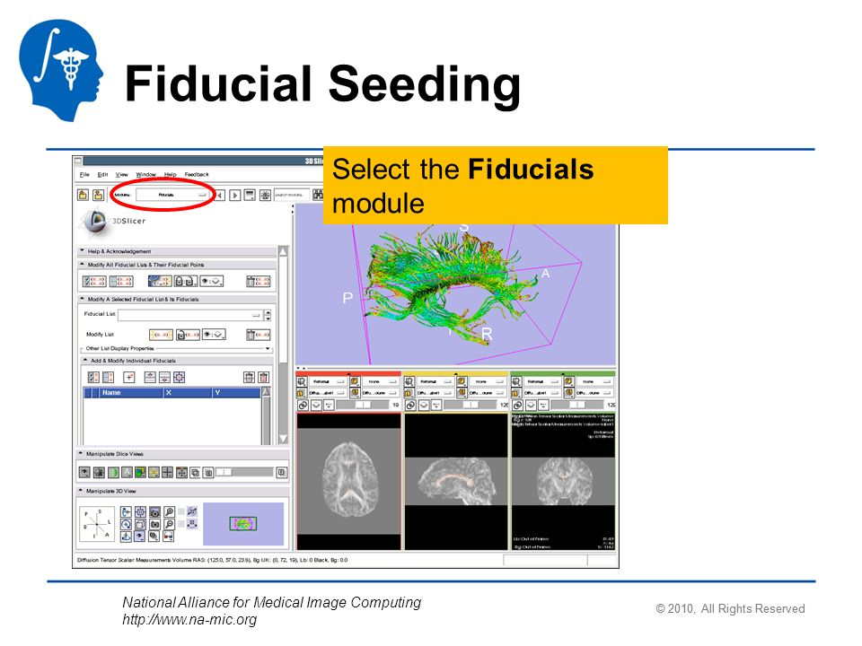 National Alliance for Medical Image Computing http://www.na-mic.org Select the Fiducials module © 2010, All Rights Reserved Fiducial Seeding