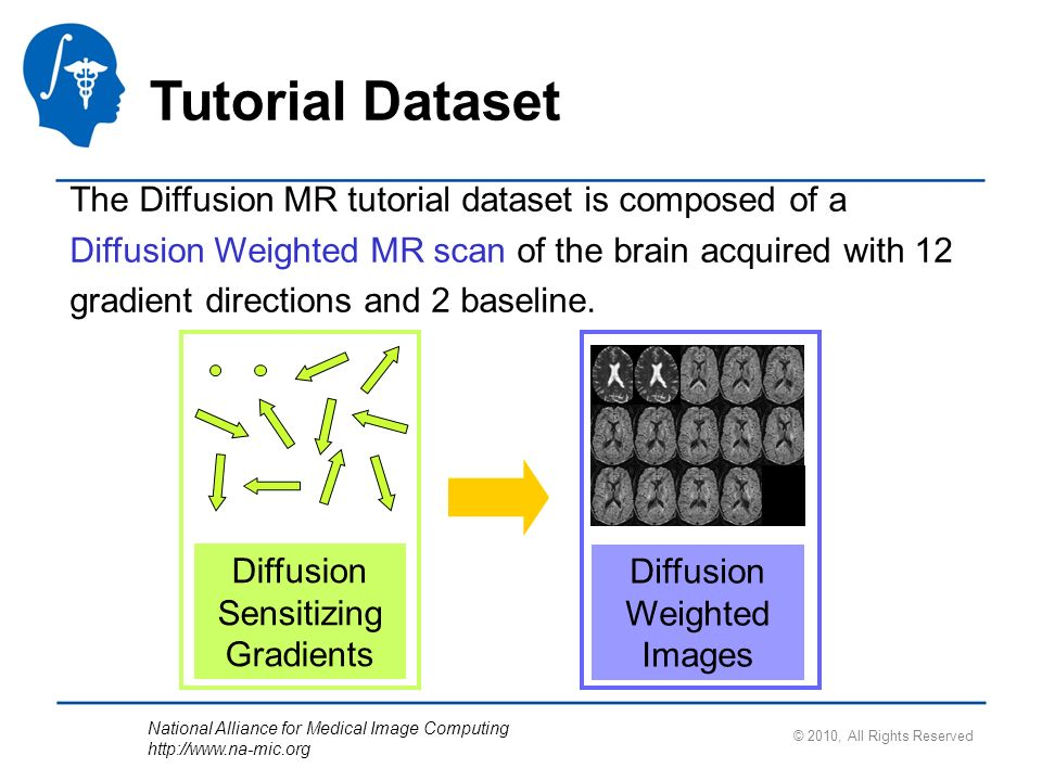 National Alliance for Medical Image Computing http://www.na-mic.org © 2010, All Rights Reserved Tutorial Dataset The Diffusion MR tutorial dataset is composed of a Diffusion Weighted MR scan of the brain acquired with 12 gradient directions and 2 baseline.