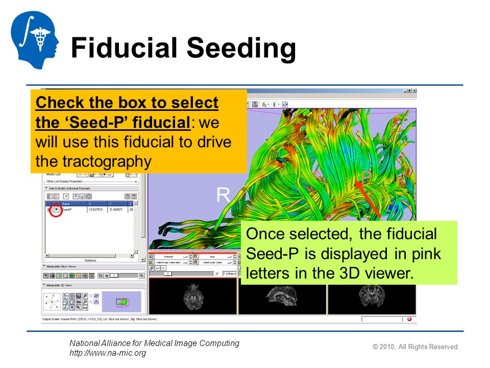 National Alliance for Medical Image Computing http://www.na-mic.org Fiducial Seeding Check the box to select the Seed-P fiducial: we will use this fiducial to drive the tractography Once selected, the fiducial Seed-P is displayed in pink letters in the 3D viewer.