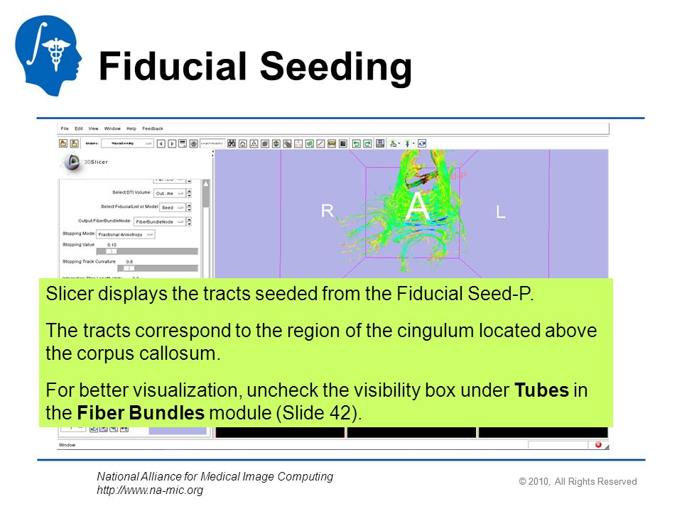 National Alliance for Medical Image Computing http://www.na-mic.org Fiducial Seeding Slicer displays the tracts seeded from the Fiducial Seed-P.