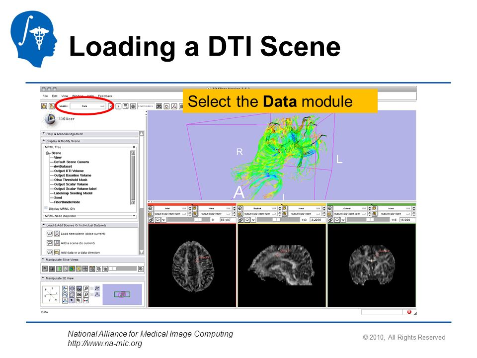National Alliance for Medical Image Computing http://www.na-mic.org Loading a DTI Scene Select the Data module © 2010, All Rights Reserved