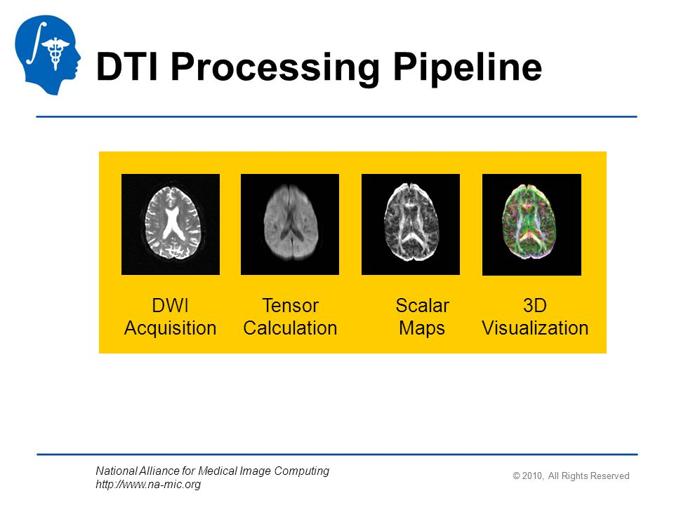 National Alliance for Medical Image Computing http://www.na-mic.org DTI Processing Pipeline DWI Acquisition Tensor Calculation Scalar Maps 3D Visualization © 2010, All Rights Reserved