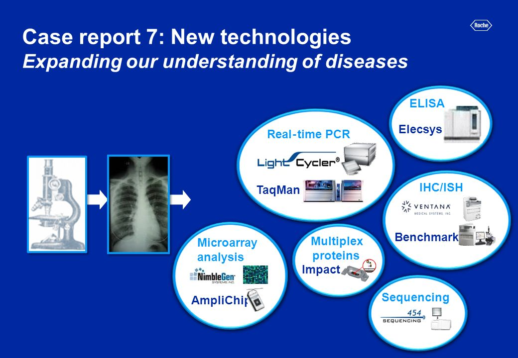 Case report 7: New technologies Expanding our understanding of diseases IHC/ISH Benchmark Microarray analysis AmpliChip Sequencing Real-time PCR TaqMan Multiplex proteins Impact Elecsys ELISA