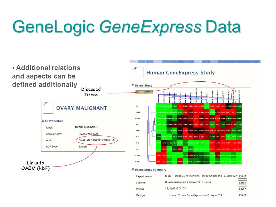 74 GeneLogic GeneExpress Data Additional relations and aspects can be defined additionally Diseased Tissue Links to OMIM (RDF)