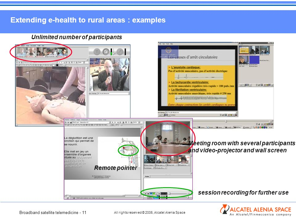 Broadband satellite telemedicine - 11 All rights reserved © 2006, Alcatel Alenia Space Extending e-health to rural areas : examples Unlimited number of participants Meeting room with several participants and video-projector and wall screen Remote pointer session recording for further use
