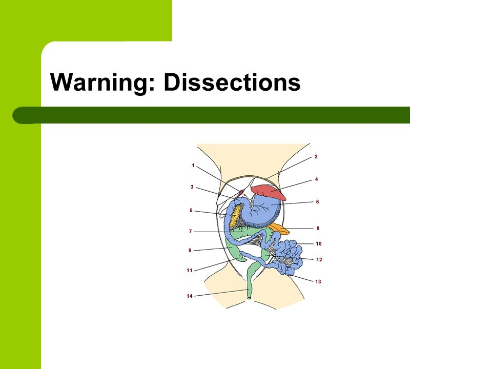 Warning: Dissections