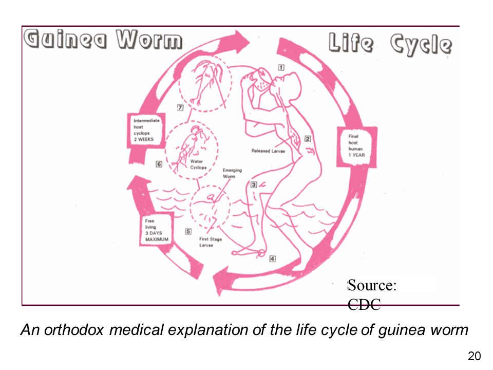 20 Source: CDC An orthodox medical explanation of the life cycle of guinea worm