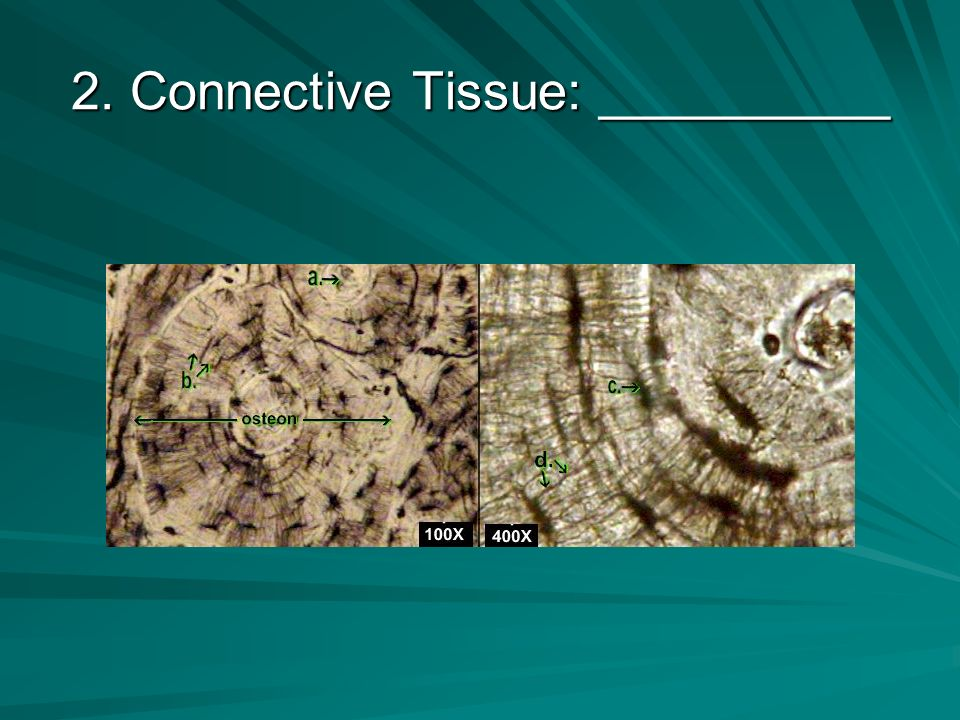1. Connective Tissue: __________