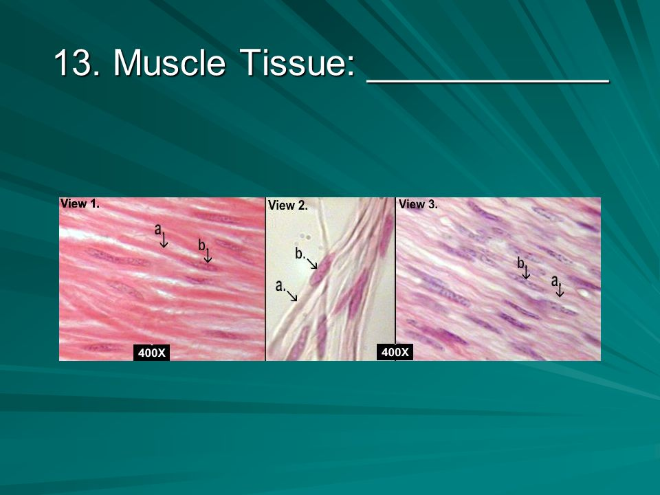 12. Epithelial Tissue: ___________