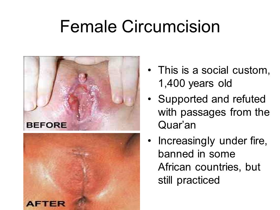 Female Circumcision This is a social custom, 1,400 years old Supported and refuted with passages from the Quaran Increasingly under fire, banned in some African countries, but still practiced