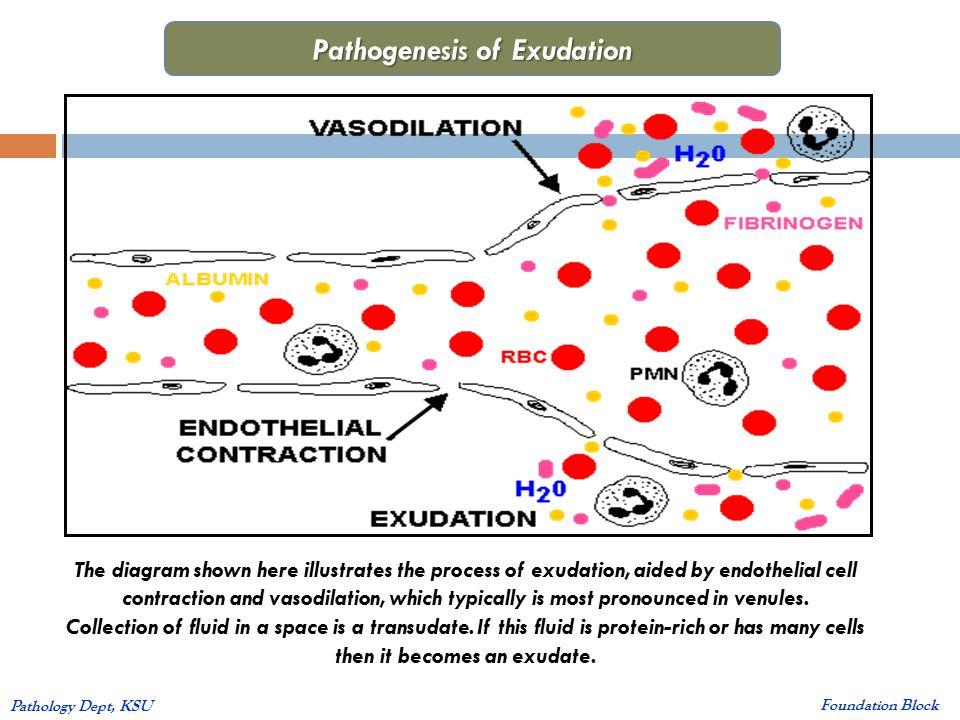 INFLAMMATION PATHOLOGY PDF
