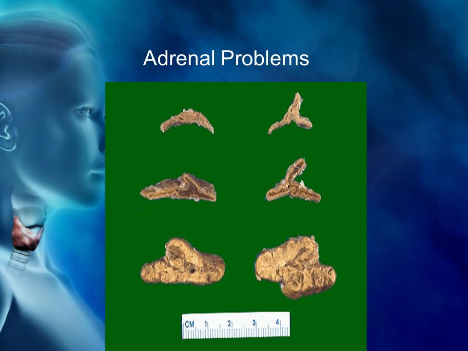 Adrenal Problems