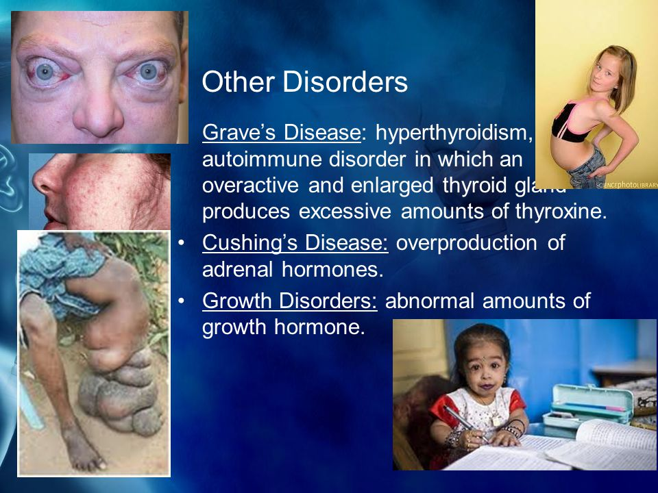 Other Disorders Grave's Disease: hyperthyroidism, an autoimmune disorder in which an overactive and enlarged thyroid gland produces excessive amounts of thyroxine.