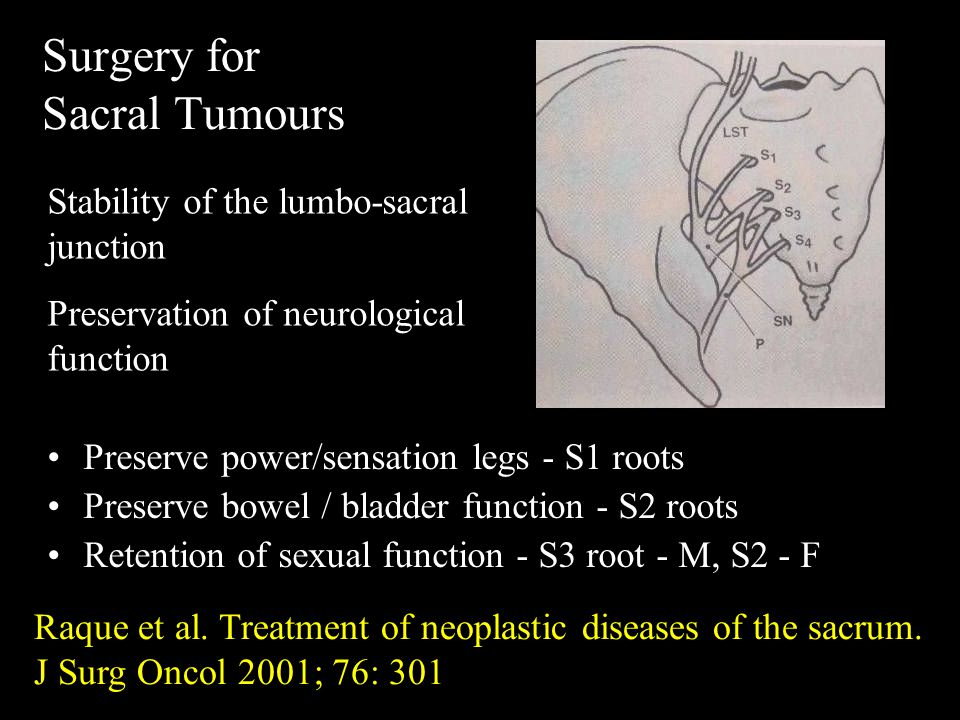 Surgery for Sacral Tumours Preserve power/sensation legs - S1 roots Preserve bowel / bladder function - S2 roots Retention of sexual function - S3 root - M, S2 - F Stability of the lumbo-sacral junction Preservation of neurological function Raque et al.