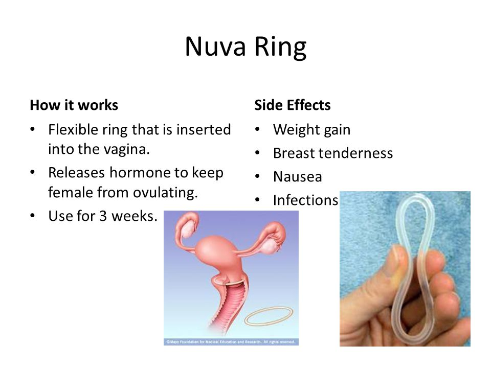 Nuva Ring How it works Flexible ring that is inserted into the vagina.