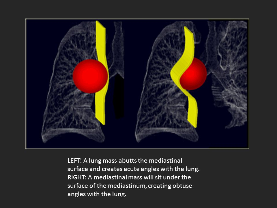 LEFT: A lung mass abutts the mediastinal surface and creates acute angles with the lung.