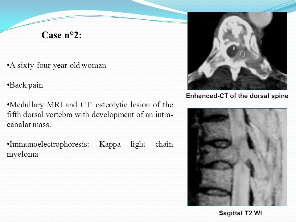 A sixty-four-year-old woman Back pain Medullary MRI and CT: osteolytic lesion of the fifth dorsal vertebra with development of an intra- canalar mass.