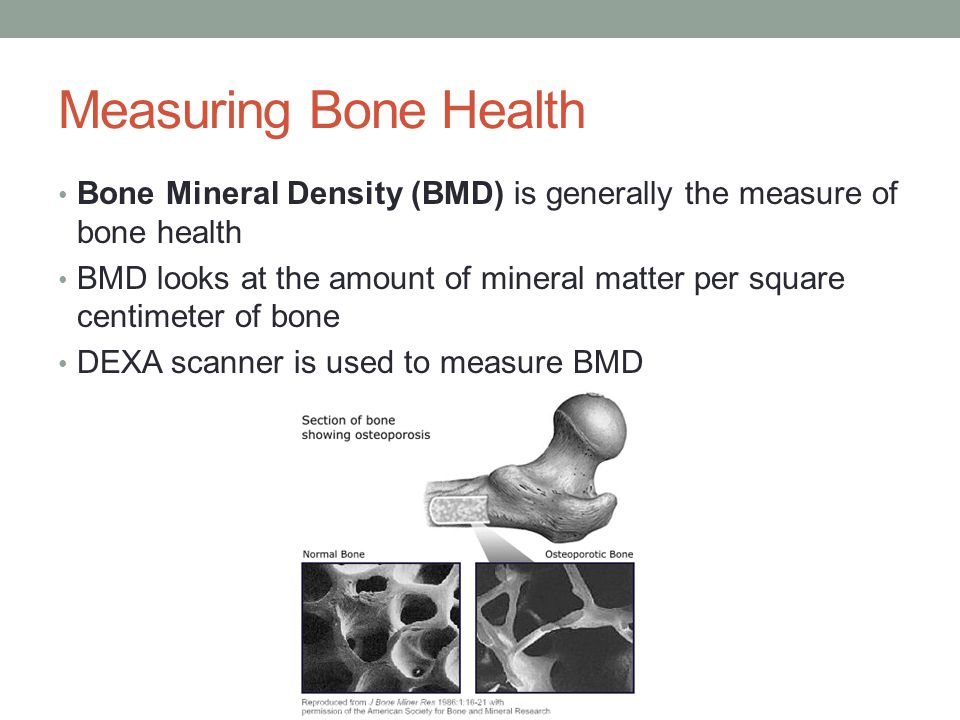 Measuring Bone Health Bone Mineral Density (BMD) is generally the measure of bone health BMD looks at the amount of mineral matter per square centimeter of bone DEXA scanner is used to measure BMD