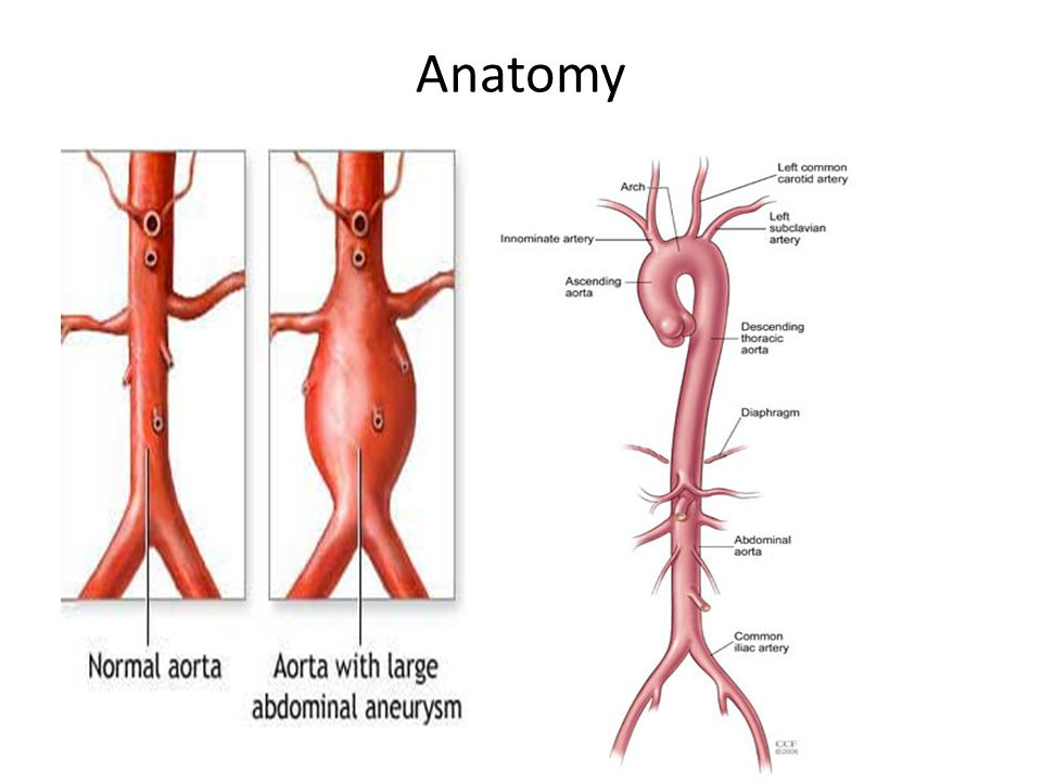 Abdominal Aortic Aneurysm (AAA) LECT7 ALI B ALHAILIY. - ppt download