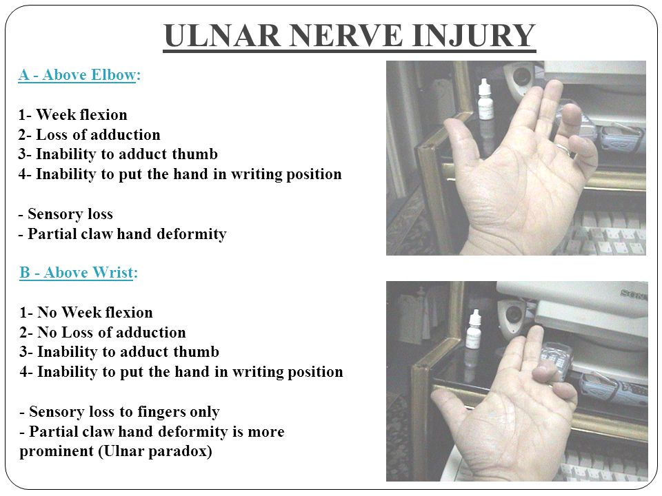 DR TATHEER ZAHRA ASSISTANT PROFESSOR ANATOMY NERVES OF UPPER LIMB ...