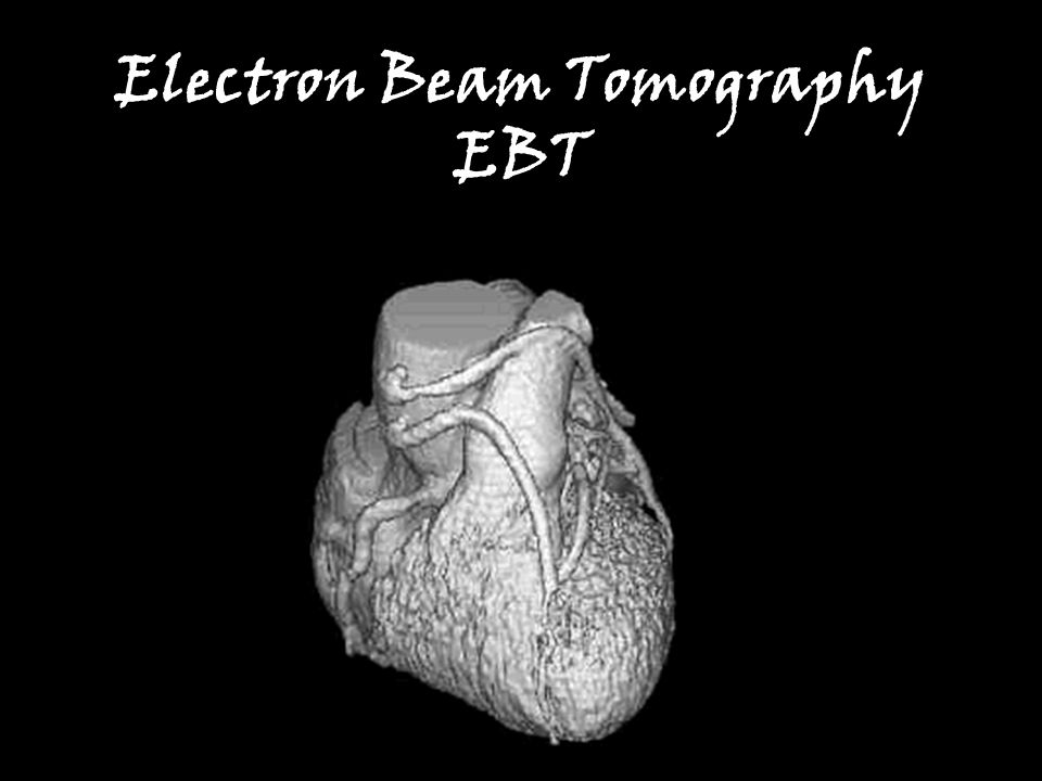 Electron Beam Tomography EBT