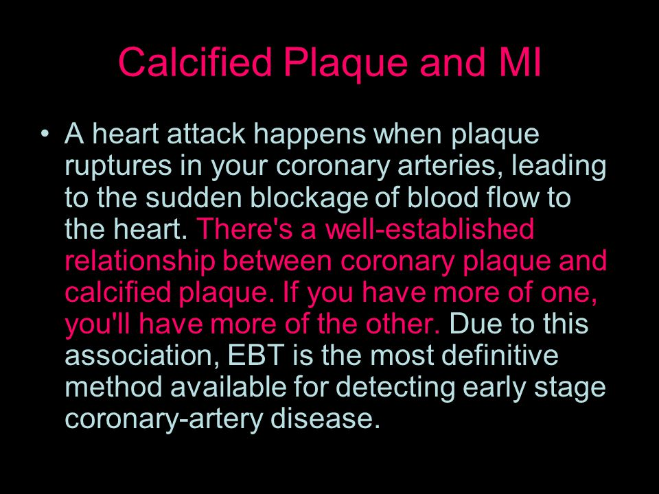 Calcified Plaque and MI A heart attack happens when plaque ruptures in your coronary arteries, leading to the sudden blockage of blood flow to the heart.