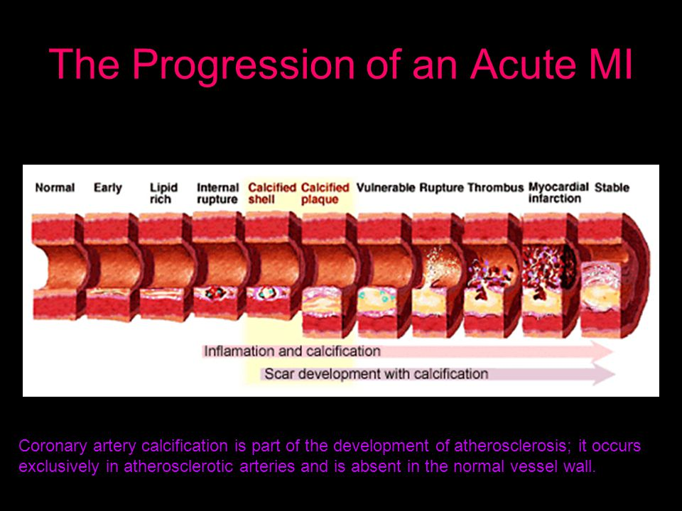 The Progression of an Acute MI Coronary artery calcification is part of the development of atherosclerosis; it occurs exclusively in atherosclerotic arteries and is absent in the normal vessel wall.