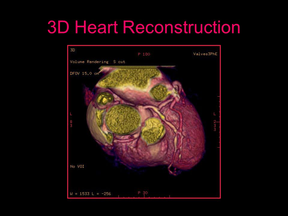 3D Heart Reconstruction