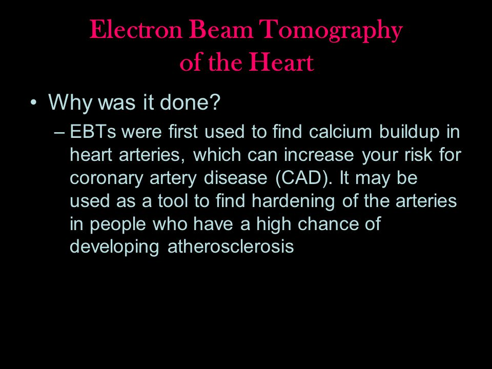 Electron Beam Tomography of the Heart Why was it done.