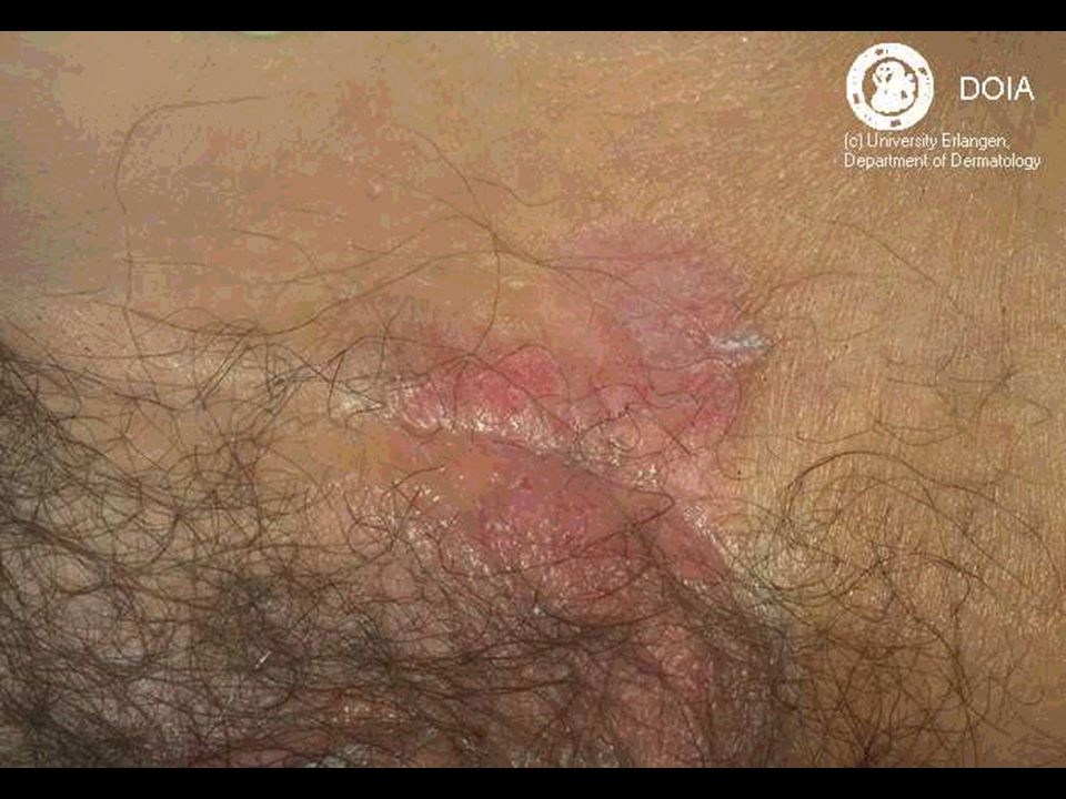Vulvar Lesions A Malibary M D Ppt Video Online Download