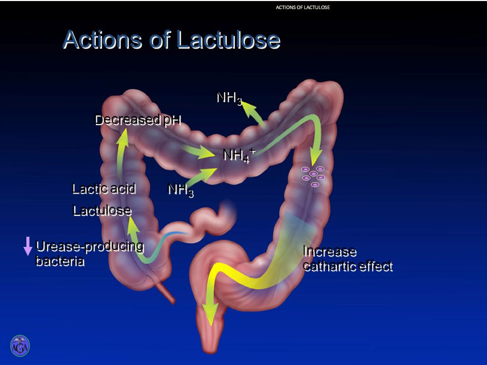 Actions of Lactulose Lactulose Lactic acid Decreased pH NH 3 Urease-producing bacteria Increase cathartic effect NH 3 NH 4 + ACTIONS OF LACTULOSE
