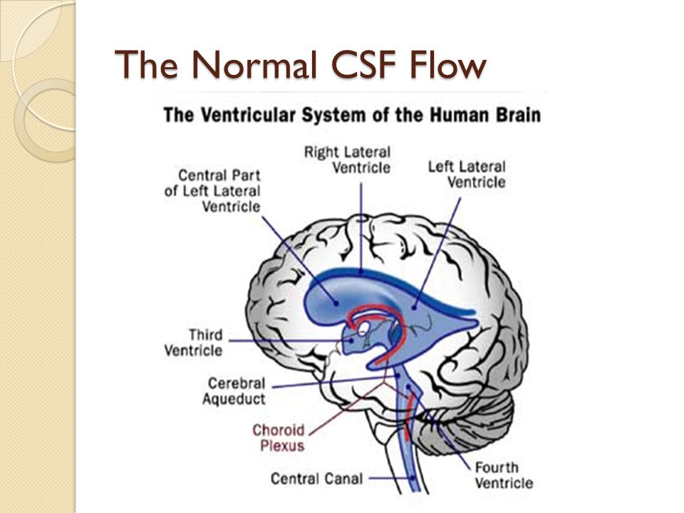 The Normal CSF Flow