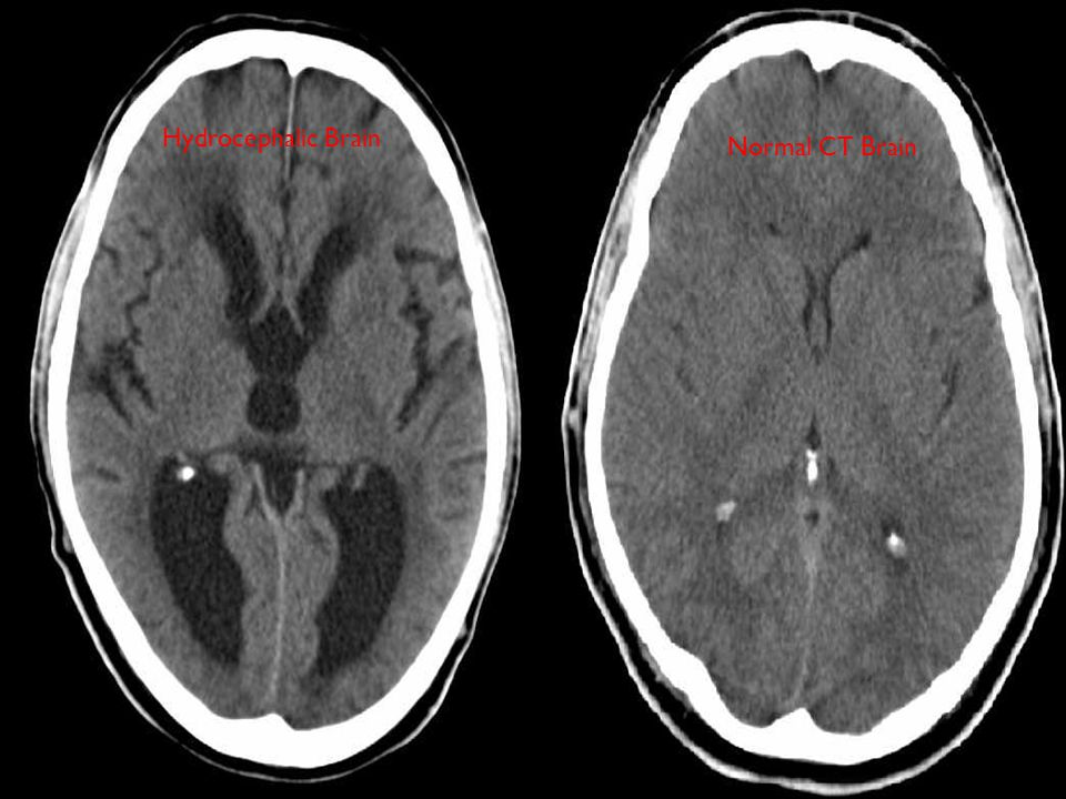 Normal CT Brain Hydrocephalic Brain