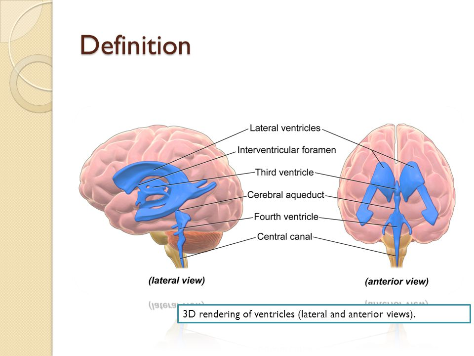 Hydrocephalus Definition Hydrocephalus Is The Result Of Buildup Of