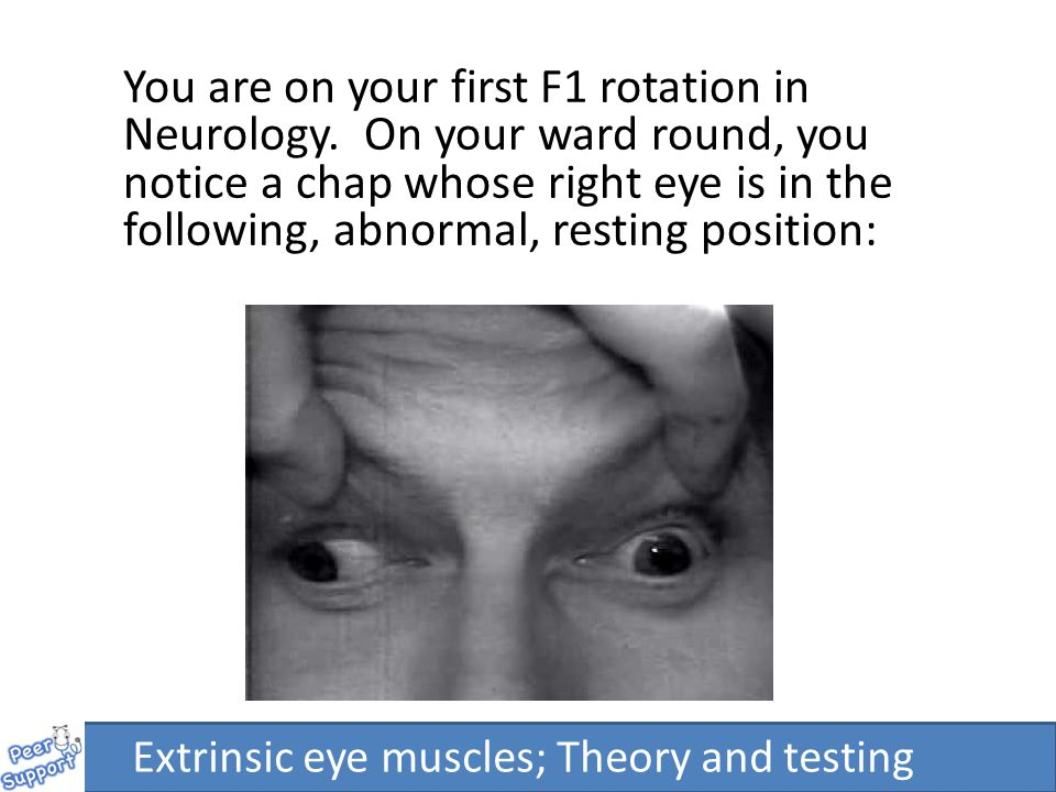 Extrinsic eye muscles: Theory and testing Adam Pearce & Emily ...