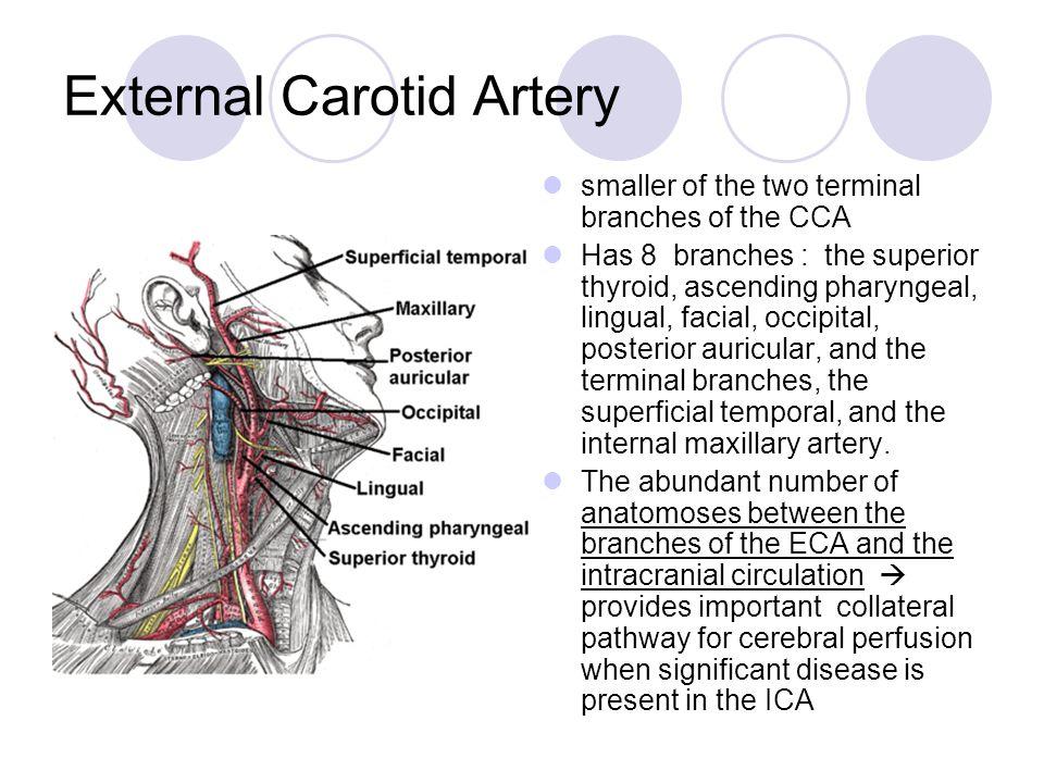 Carotid Artery Disease Lenore C. Ocava, MD Vascular Neurology AECOM ...