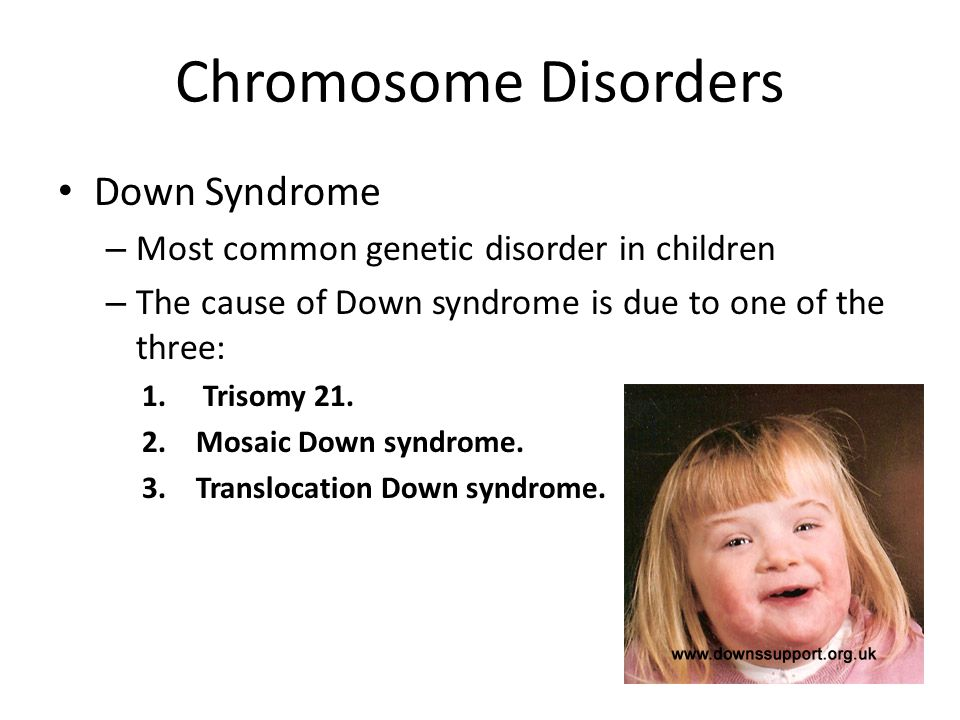 tourette syndrome symptoms causes and genetics Tourette syndrome is a childhood neuropsychiatric disorder, which presents with disruptive motor and vocal tics the disease also has a high comorbidity with obsessive-compulsive disorder and attention deficit hyperactivity disorder, which may further increase the distress experienced by patients.