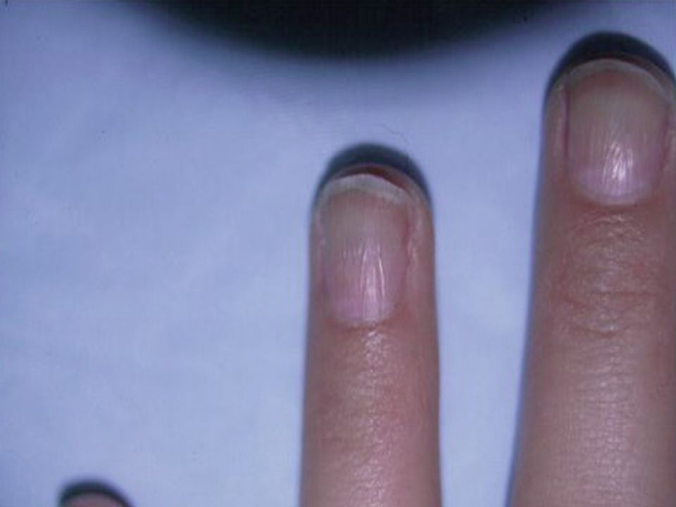 44 This Condition Is Usually Caused By Injury To The Matrix Excessive Use Of Cuticle Removers Harsh Cleaning Agents Nail Polish