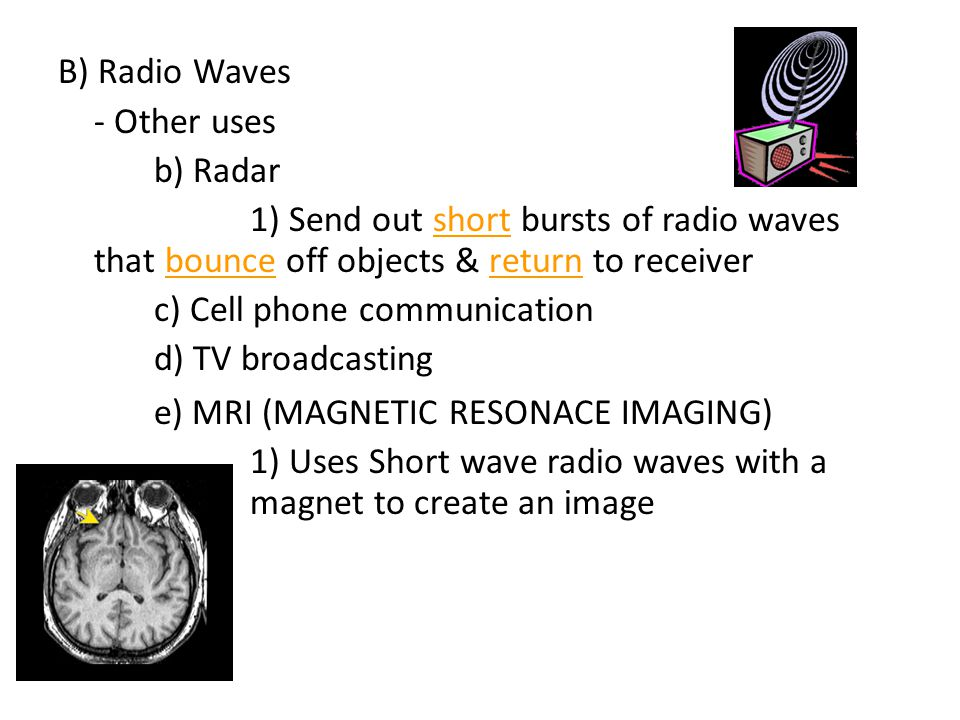 B) Radio Waves - Other uses b) Radar 1) Send out short bursts of radio waves that bounce off objects & return to receiver c) Cell phone communication d) TV broadcasting e) MRI (MAGNETIC RESONACE IMAGING) 1) Uses Short wave radio waves with a magnet to create an image