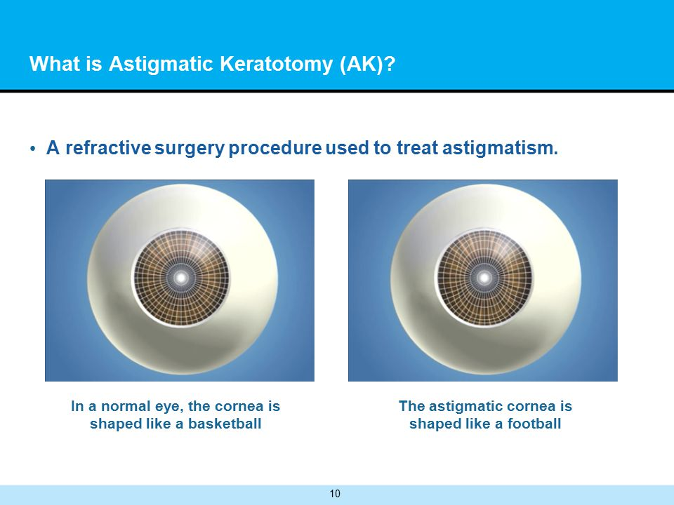10 What is Astigmatic Keratotomy (AK). A refractive surgery procedure used to treat astigmatism.