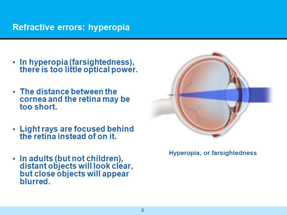5 Refractive errors: hyperopia In hyperopia (farsightedness), there is too little optical power.