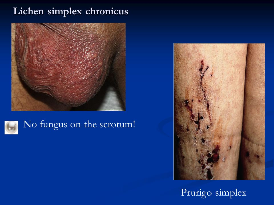 Dermatitis 101: Diagnosis and Treatment of Eczema Adrian
