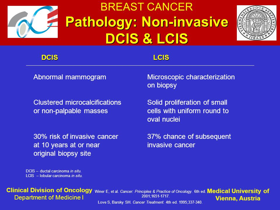 Lcis breast cancer risk