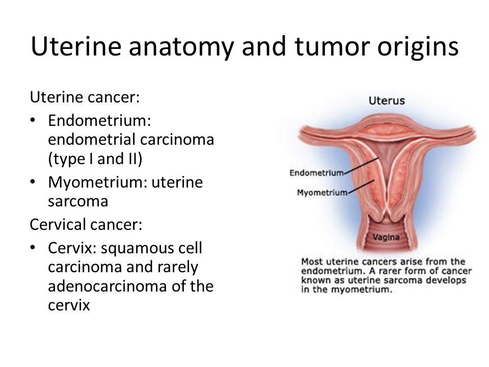 Ovarian cancer endometrial