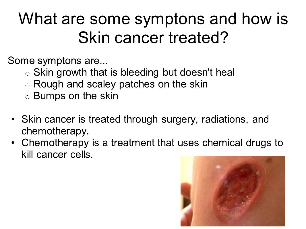 What are some symptons and how is Skin cancer treated.