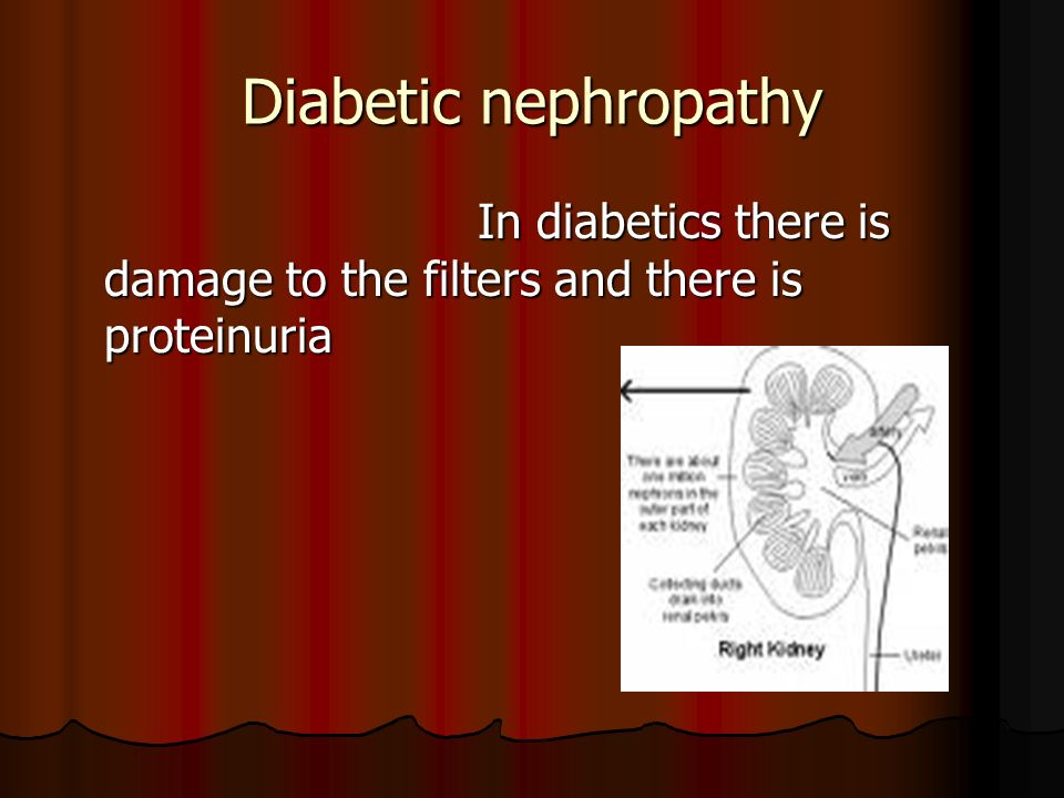 Diabetic nephropathy In diabetics there is damage to the filters and there is proteinuria In diabetics there is damage to the filters and there is proteinuria