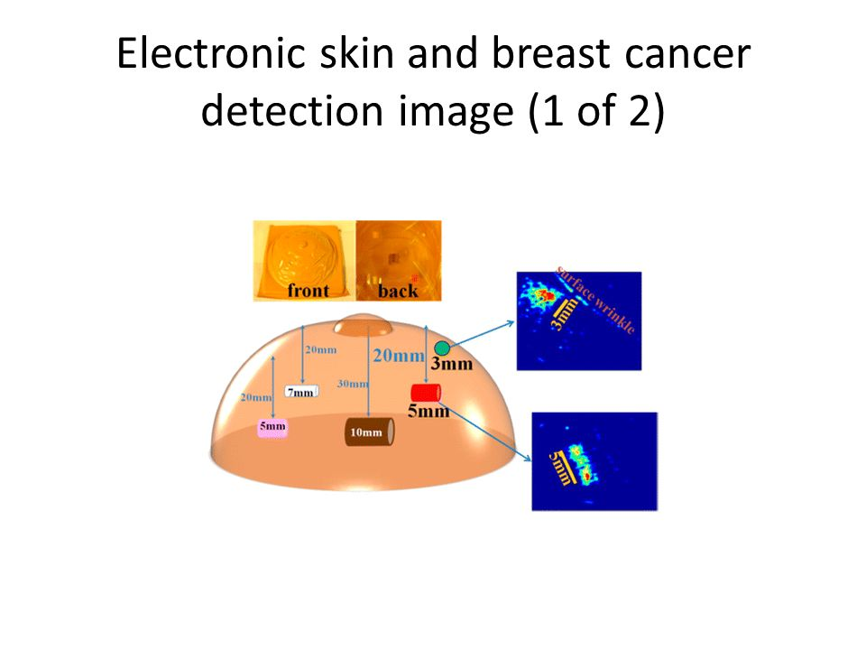 Bioelectronics, Medical Imaging and Our Bodies Week 3: X