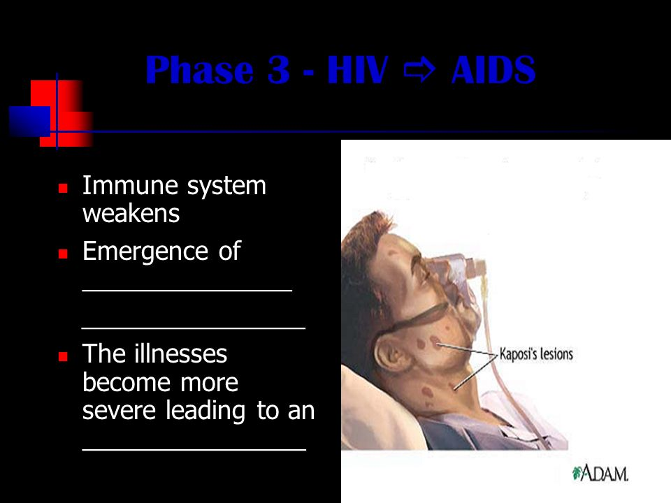 Phase 3 - HIV  AIDS Immune system weakens Emergence of _______________ ________________ The illnesses become more severe leading to an ________________