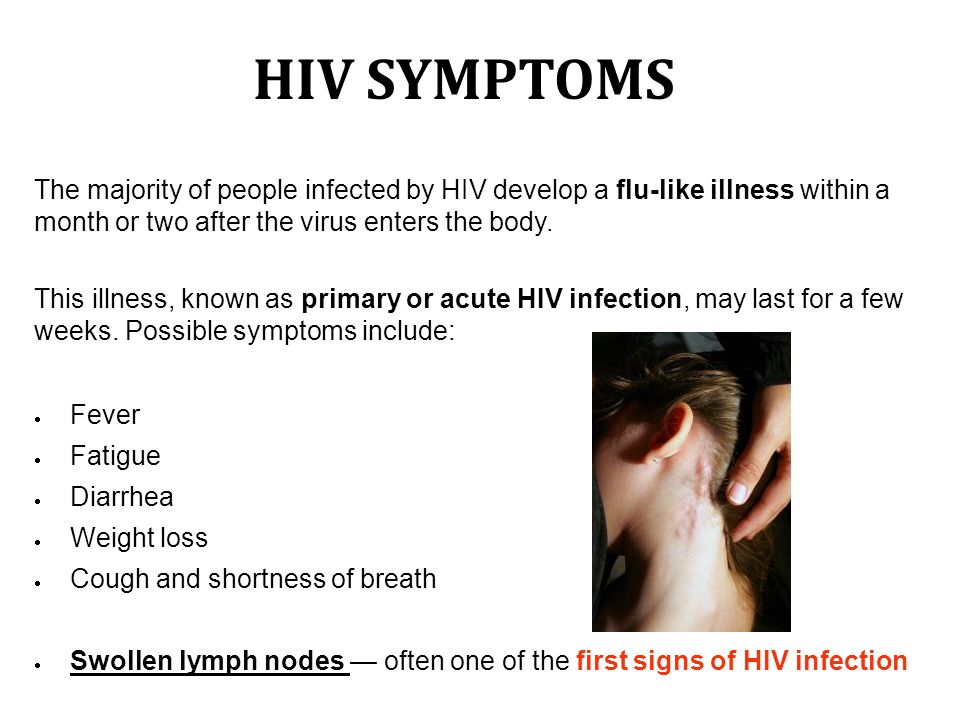With Dr  Diego  HIV HIV SYMPTOMS The majority of people infected by