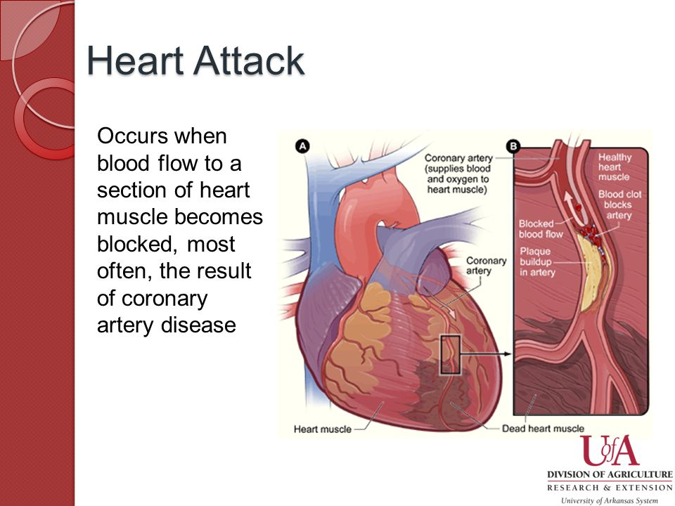 Occurs when blood flow to a section of heart muscle becomes blocked, most often, the result of coronary artery disease Heart Attack